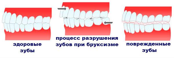 скрип зубами у детей последствия