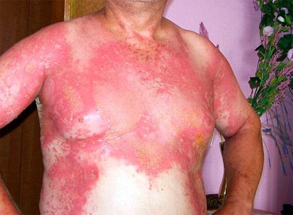 Подобные ожоги оставляют шрамы на долгие месяцы.