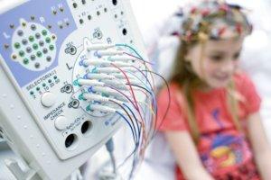 ЭЭГ – это метод исследования активности головного мозга