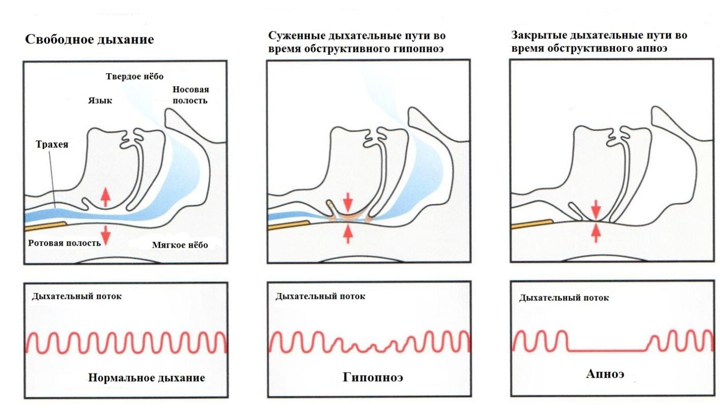 Симптомы апноэ