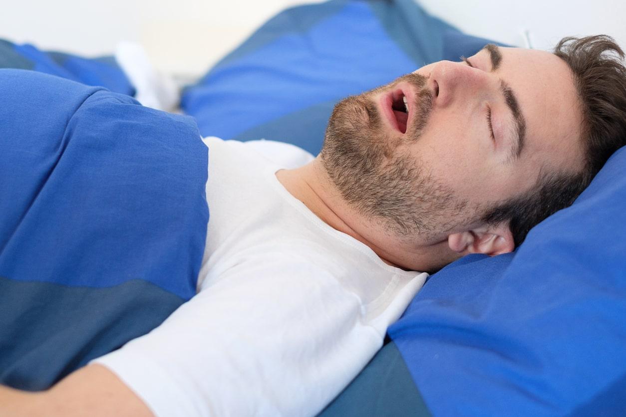 апноэ во время сна